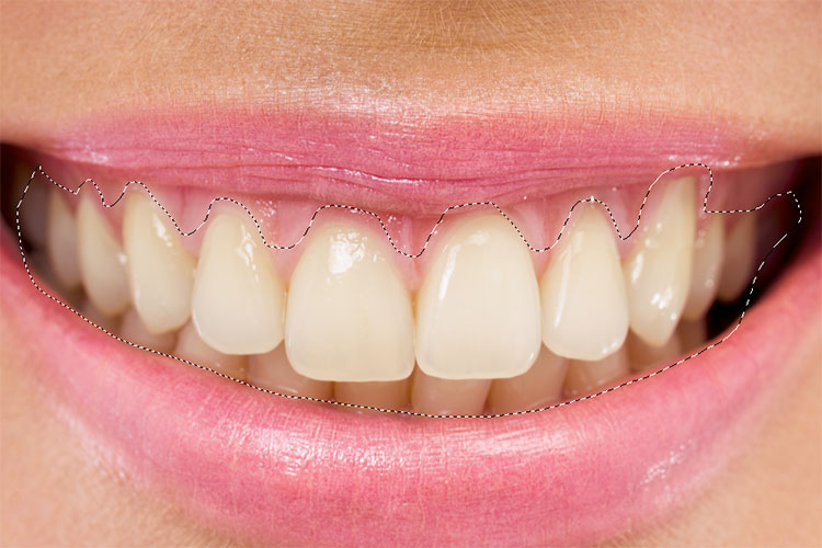 How To Whiten Teeth In Photoshop Myphotocentral